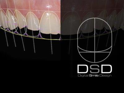 DSD - Digital Smile Design