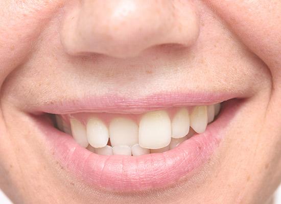 Crooked Misaligned Teeth